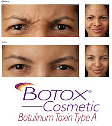 Cosmetic Botox Treatments for Crow's Feet & Frown Lines